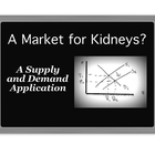 A Market for Kidneys? - A Supply and Demand Application