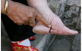 Chinese Foot Binding - VERY VISUAL - Powerpoint (PPT)
