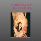 Osteomyelitis Nursing Care